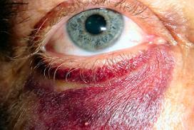 Dief slaat slager blauw oog